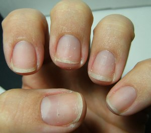 how to remove enhancements without damaging nails